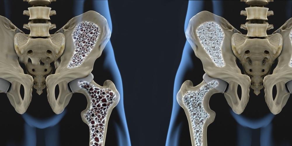 pilates-osteoporose-mob