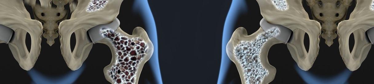 pilates-osteoporose